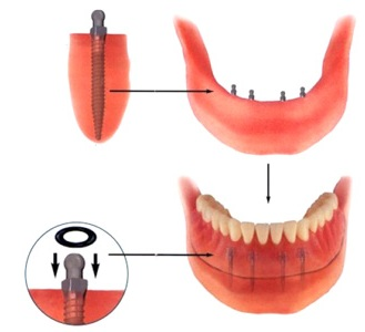 Combined complete denture on mini implants
